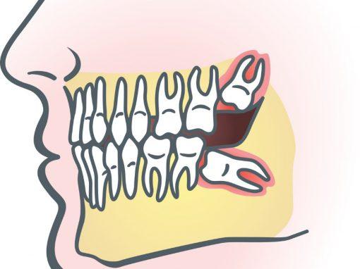 Incluzia dentara